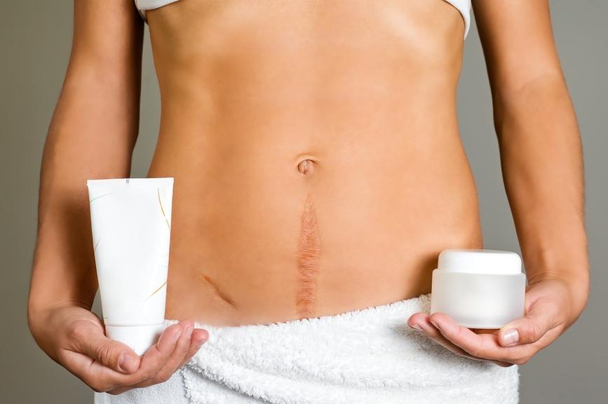 Cum să pierdeți baltă de stomac inferior - Sănătate -