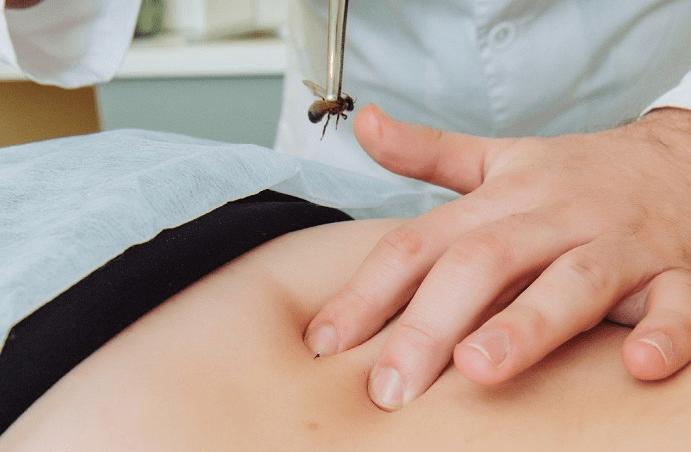 apiterapie varicoză recenzii