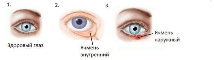 Болезнь глаз — ячмень