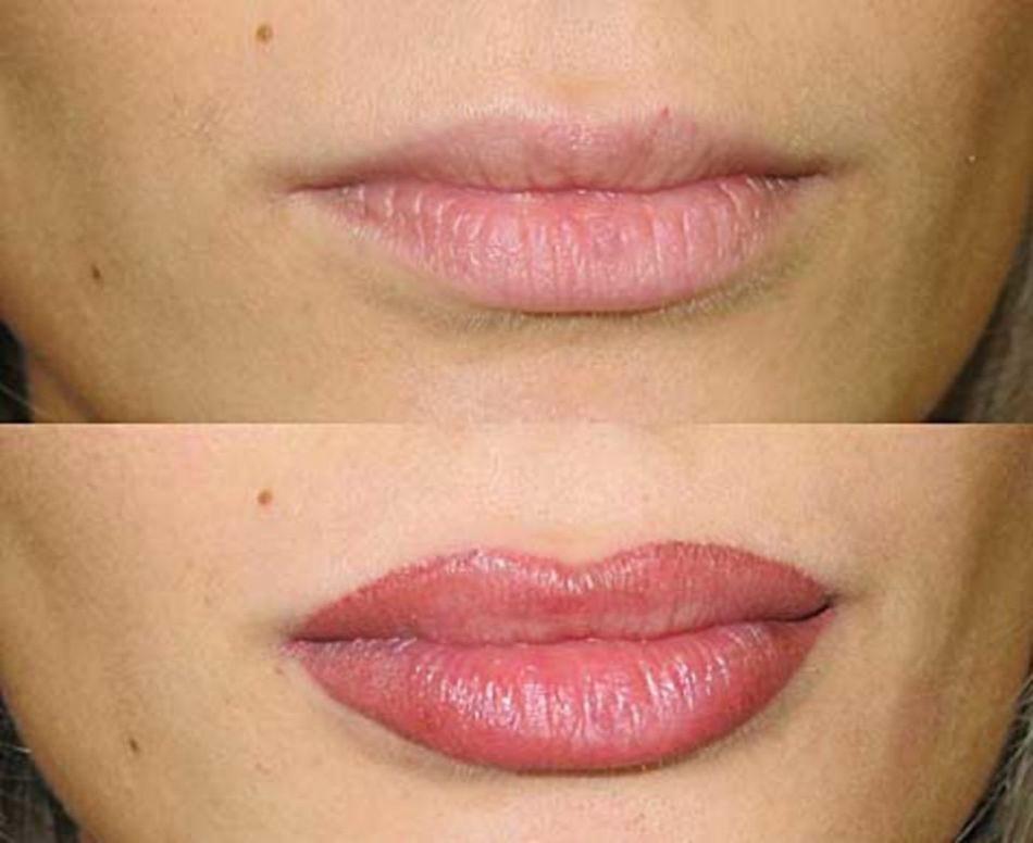 самом микроблейдинг губ фото до и после жвец, жнец, дуде