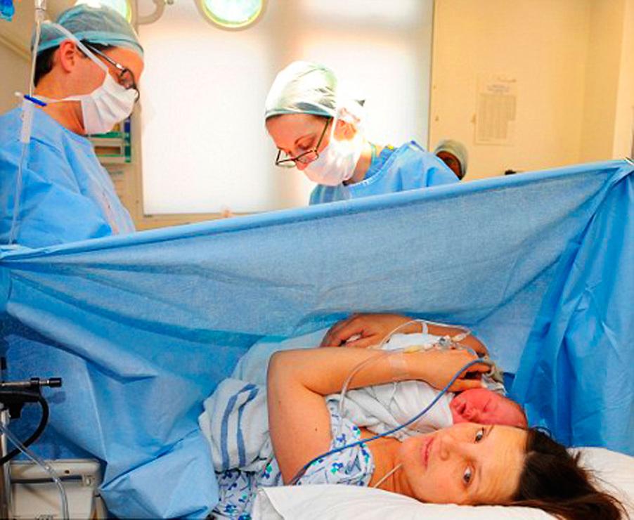varicoză după tratamentul secțiunii cezariene)