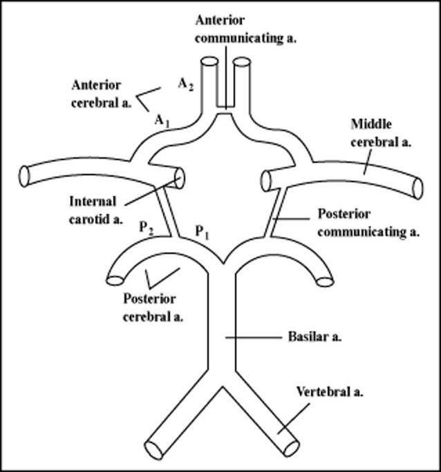 Incomplete Circle of Willis and Migraine: Role for Shear
