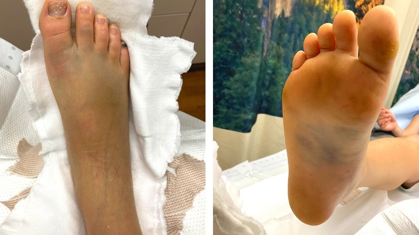 Top and bottom view of a broken foot with substantial bruising and swelling