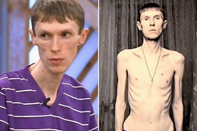 29-летний житель Башкирии похудел до 37 килограммов