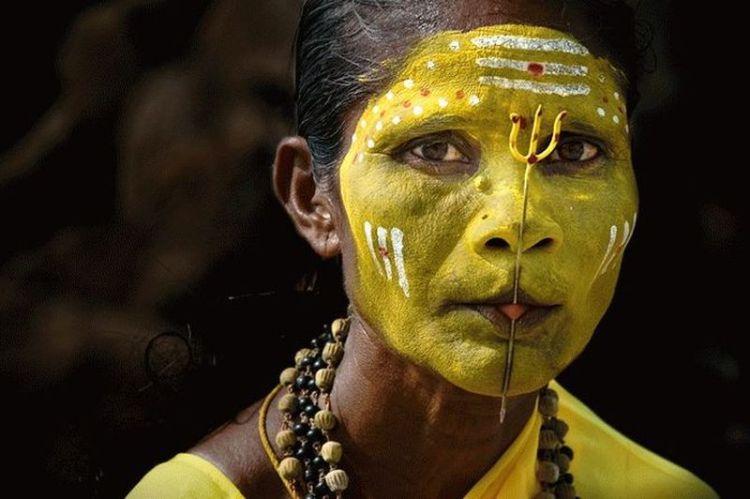 О каких заболеваниях может говорить желтый цвет лица