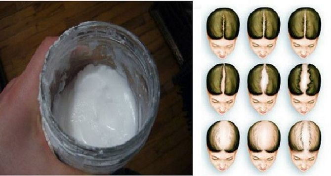 SODIUM-BICARBONATE-SHAMPOO-It-Will-Make-Your-Hair-Grow-Like-It-Is-Magic_result