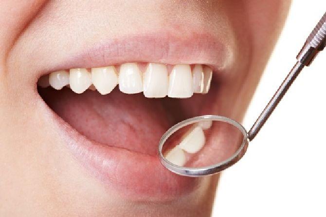 zubnoi-nalet_result