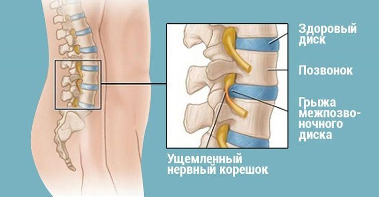 Избавьтесь от спинной грыжи без операции уже через полгода, делая эти простые упражнения