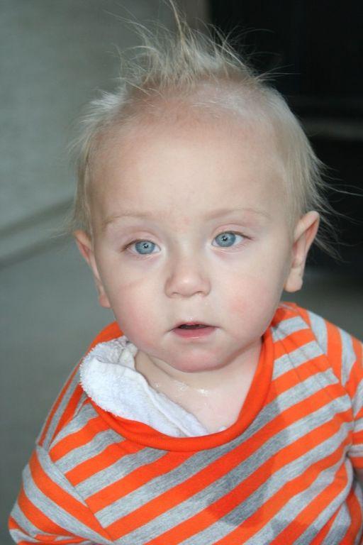 Малыш пережил 65 операций из-за этой мелкой детали, которая есть в каждом доме