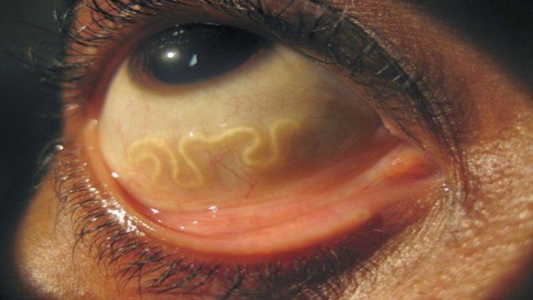 Признаки наличия паразитов в организме. Проверьте себя и своих близких!
