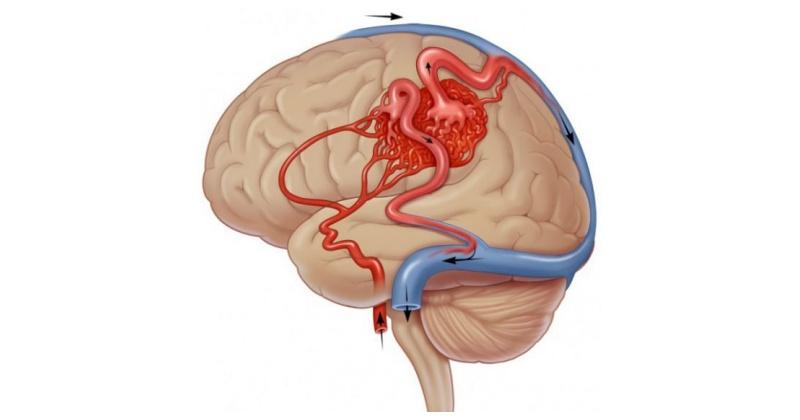 Елена шведова как улучшить мозговое кровообращение