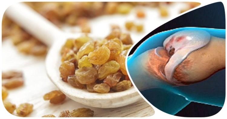 Избавить организм от избытка солей и вылечить суставы поможет изюм с медом