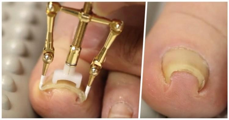 За 30 минут и без боли: в Японии создано простое устройство для лечения вросшего ногтя