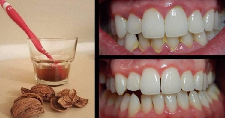 Удаление зубного камня в домашних условиях: поможет скорлупа грецкого ореха