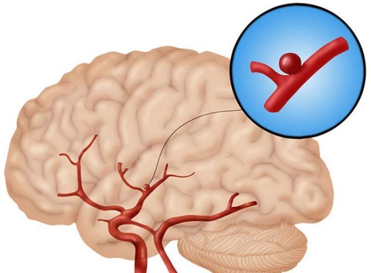 Устали от шума в голове и звона в ушах: пора чистить больные сосуды головного мозга