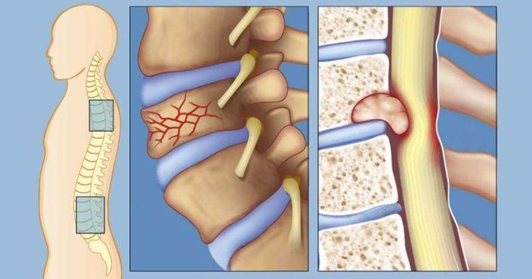 Боль в спине может быть признаком гораздо более серьезного заболевания: 6 симптомов хвори в организме