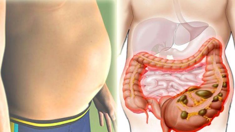 Вы не толстые, у вас вздутие: как убрать живот с помощью натуральных средств