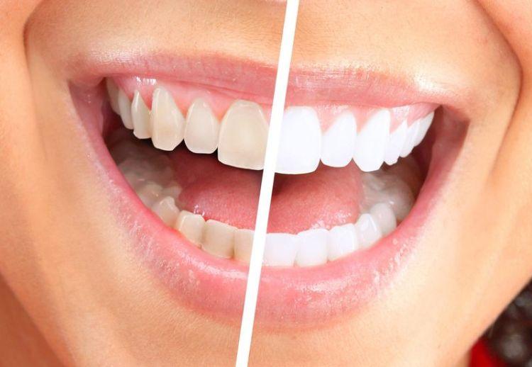 Эмаль нельзя восстановить: мифы и правда о зубных пастах, о многих с которых вы не догадывались