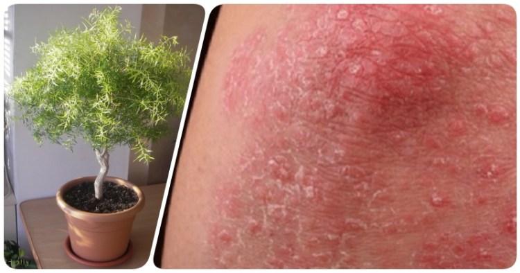 Целебное и доступное масло мелалеука: лечит псориаз, грибок, простуду и прыщи