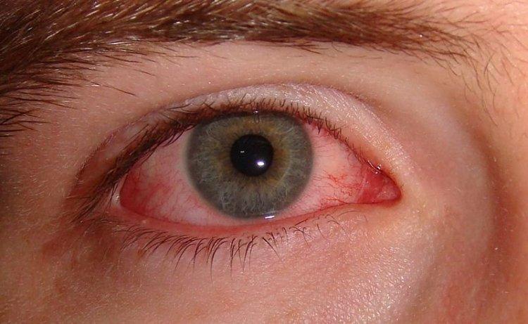Моргание как самая важная часть лечения: 14 советов экспертов, как избавиться от постоянной сухости глаз