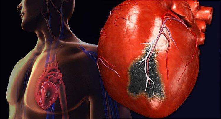 Спастись за 10 секунд: что делать, если застал сердечный приступ, а рядом никого
