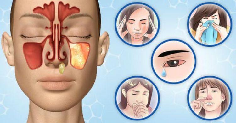Как правильно лечить заложенность, или про капли для носа как большой миф
