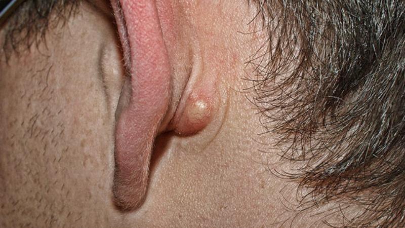 Шишка за ухом: насколько опасно и как лечиться
