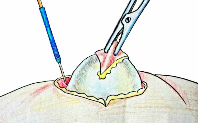 Вывести жировик на теле поможет тонкая пленка под скорлупой куриного яйца