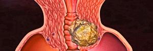 Рак шейки матки: как вовремя заметить, чтобы спастись