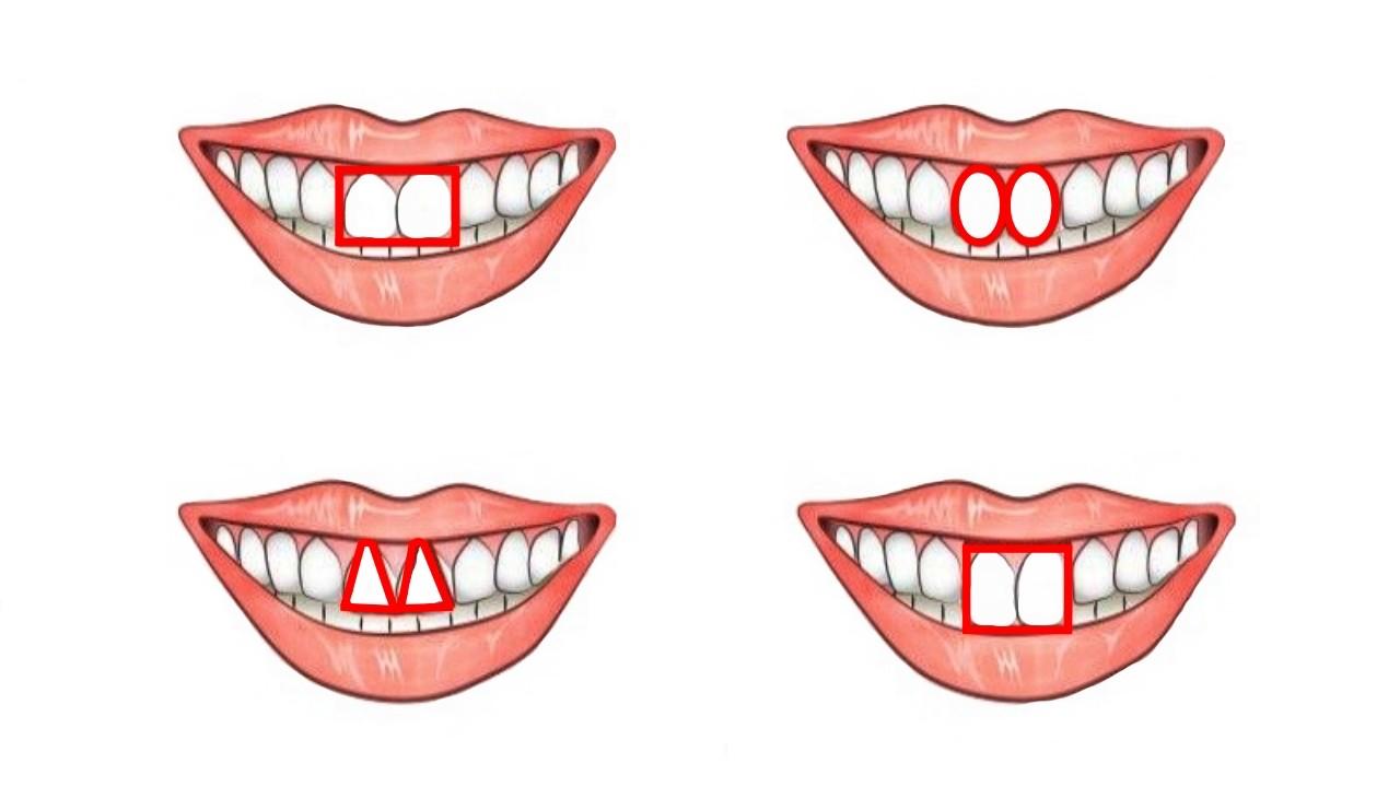 Как распознать в человеке эгоиста по передним зубам