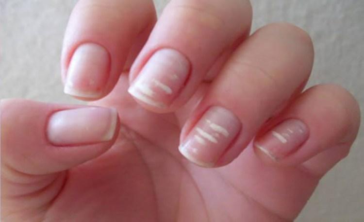 Внимание на белые полоски: что ногти могут рассказать о здоровье