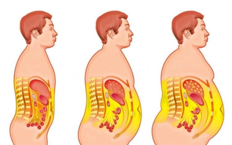 Виды ожирения и что делать со всем этим богатством