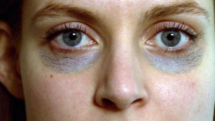 Не просто внешний дефект: темные круги под глазами расскажут много чего о здоровье