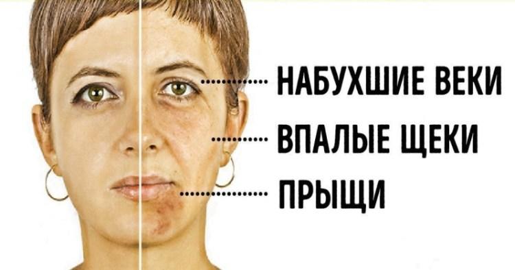 Проблемная кожа лица: как удалить 4 продукта из рациона и снова стать красивой