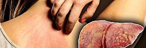 Первые симптомы болезни печени, знание которых может спасти жизнь