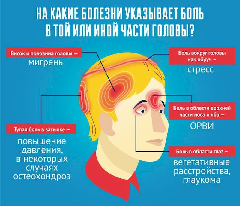 О чем говорит боль в той или иной части головы
