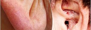 Складки, ямочки, зуд и низкая посадка: что наши уши могут рассказать о здоровье