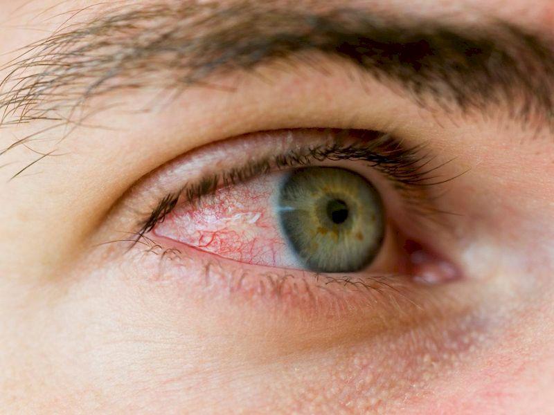 Причины появления и способы помогающие убрать красноту с глаз