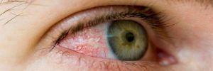 Красные глаза: как избавиться от покраснения при помощи домашних средств