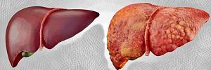 Цирроз печени и 8 причин перерождения естественного фильтра человека