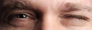 Глазной тик: почему дергается глаз и как это предотвратить