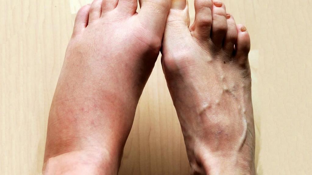 10 причин, почему отекают ноги, и как снимать отек