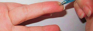 Нажмите всего на одну точку на пальце, чтобы экстренно снизить давление