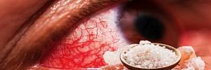 Ячмень на глазу и халязион: 3 быстрых способа вылечить глазную инфекцию в домашних условиях
