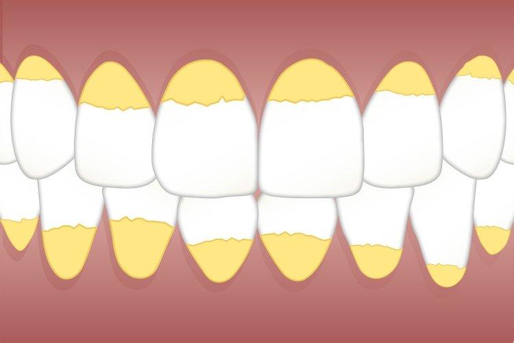 Можно ли удалить зубной камень дома самостоятельно и как лучше это сделать