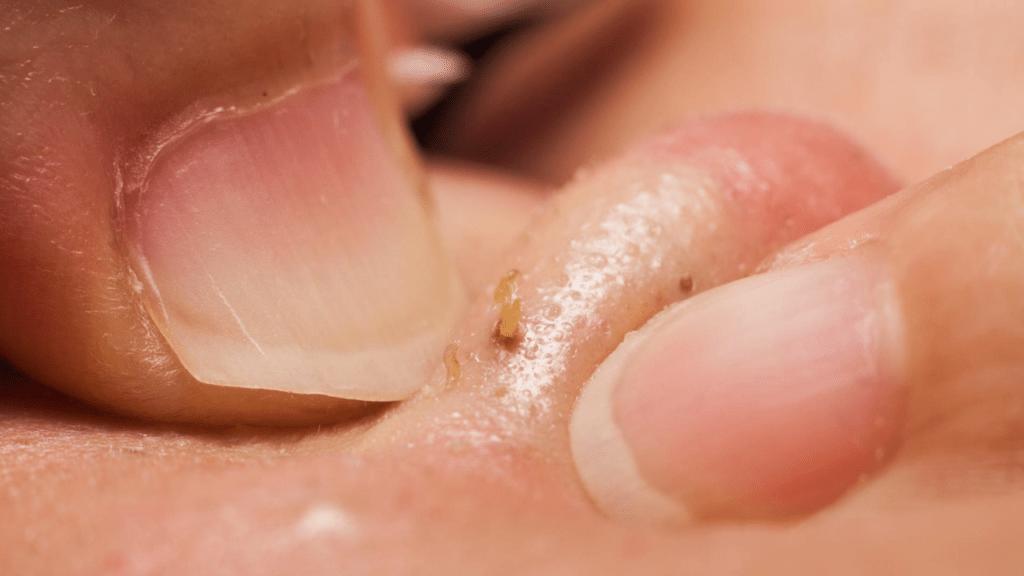 11 способов очистить кожу от сальных пробок и избавиться от угревой сыпи