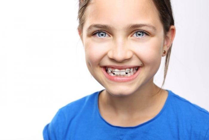 Ортодонтические пластинки – залог здоровых зубов и сияющей улыбки вашего ребенка