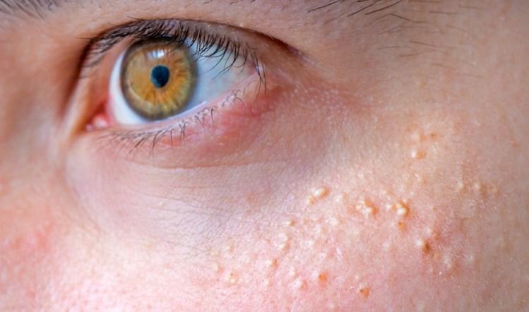 Милиумы (просянка): что делать, если на коже появились крохотные белые узелки