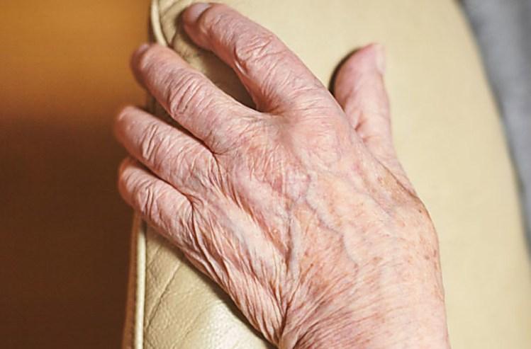 Дряблая и тонкая кожа: 4 решения проблемы по совету дерматолога из всемирно известной клиники