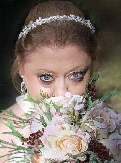 30-річна дівчина з жахливою хворобою вийшла заміж. Ми підглянули, як це було ...